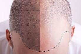به طبیعی ترین شکل ممکن مو بکارید