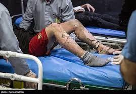 مصدومیت ۲ کودک در گلستان در اثر انفجار مواد محترقه