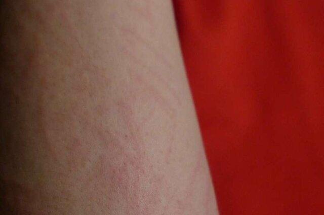 بثورات پوستی، از نخستین نشانههای ابتلا به کرونا