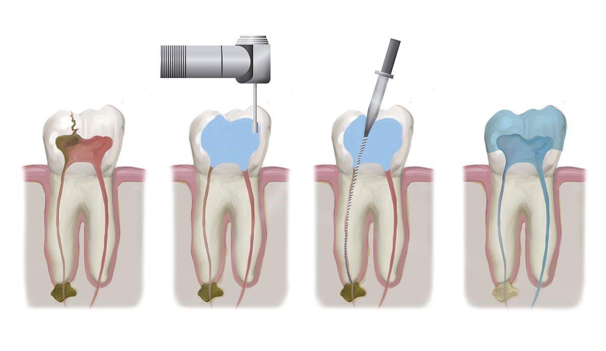 دکتر صفورا امامی متخصص ریشه دندان و عصب کشی