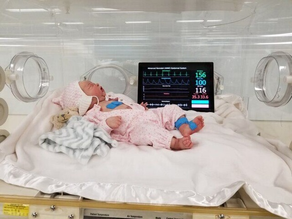 تولد نوزاد سالم از مادر کرونایی در تبریز