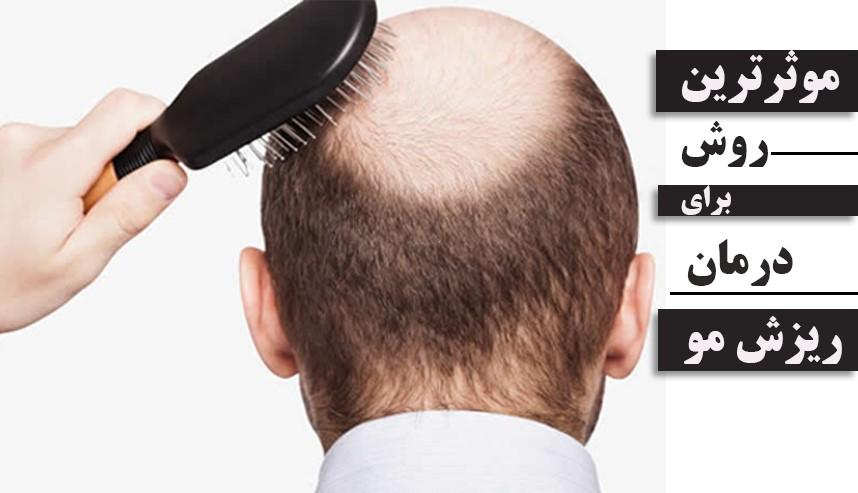 بررسی تمام روش های درمان ریزش مو