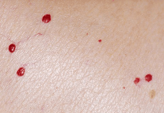 ۵ بیماری پوستی مرتبط با کرونا