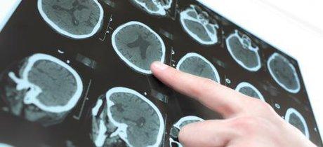 سکته مغزی ۲۵ مبتلا به کرونا در بیمارستان شهدای تجریش