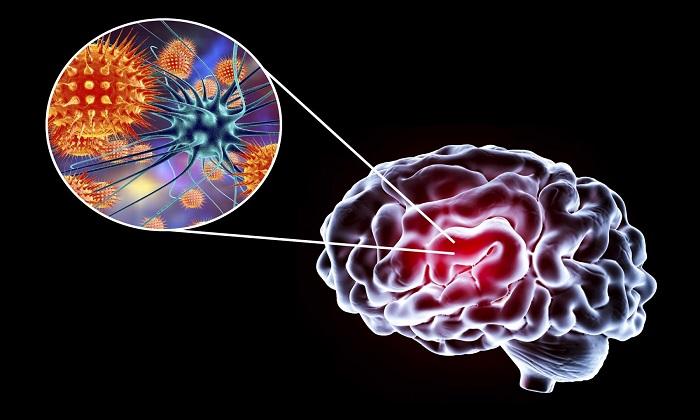 7 نشانه هشدار دهنده حضور کووید-19 در مغز