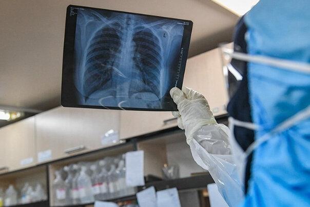 نارسایی تنفسی؛ علت اول مرگ بیماران کرونا