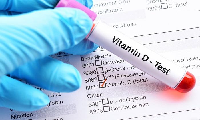 ارتباط ویتامین D با بیماریهای روده و سرطان