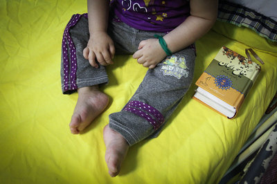 روایتی تلخ از بخش کرونای بیمارستان کودکان