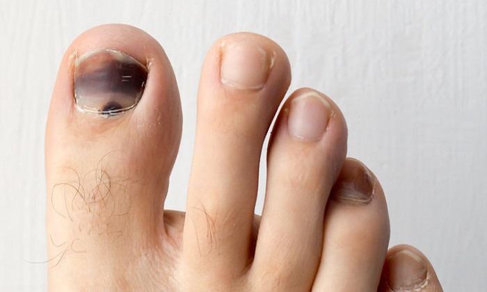 5 دلیل سیاه شدن ناخن انگشت پا