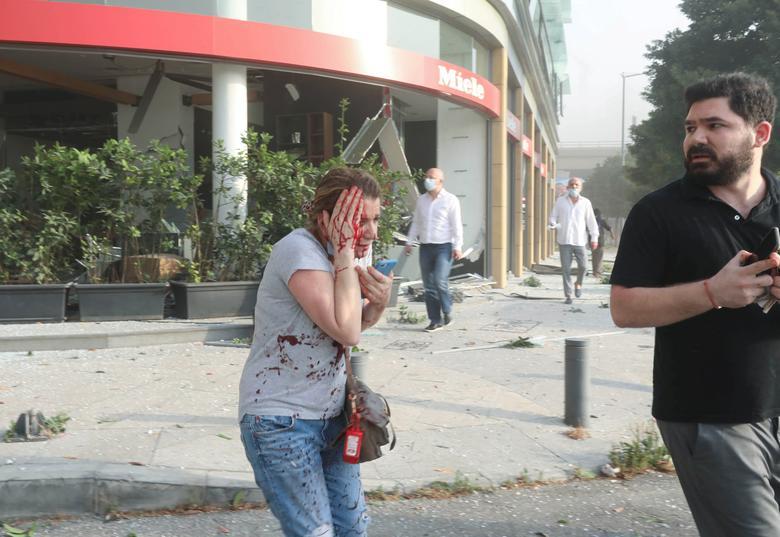 مردم آسیب دیده بیروت