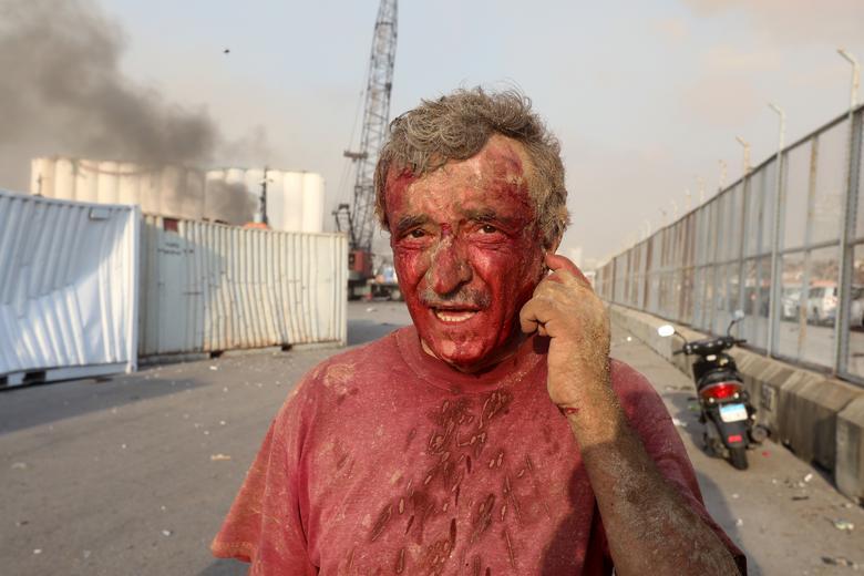 مرد زخمی در بیروت
