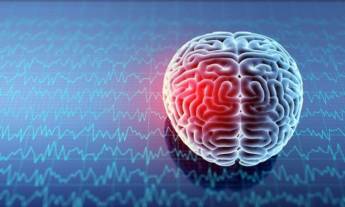 خونریزی در مغز؛ از علائم تا پیشگیری