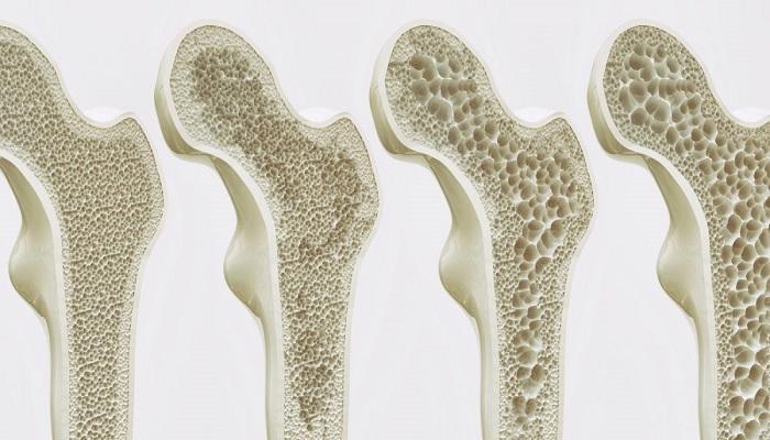 پوکی استخوان و عوامل خطر برای آن