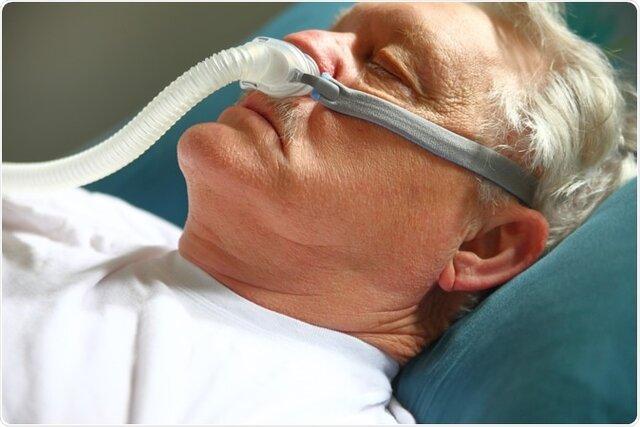 اثر کرونا در بیماران مبتلا به آپنه خواب خطرناکتر است