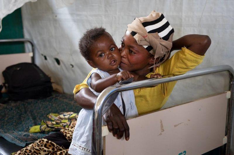 شیوع سرخک در کنگو