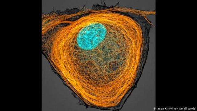 ریزلولهها یا میکروتوبول