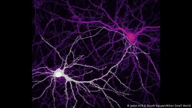 سلولهای عصبی هیپوکامپ در مغز انسان