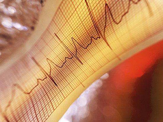مرگ و میر بیماریهای قلبی همچنان بالاتر از فوتیهای کرونا