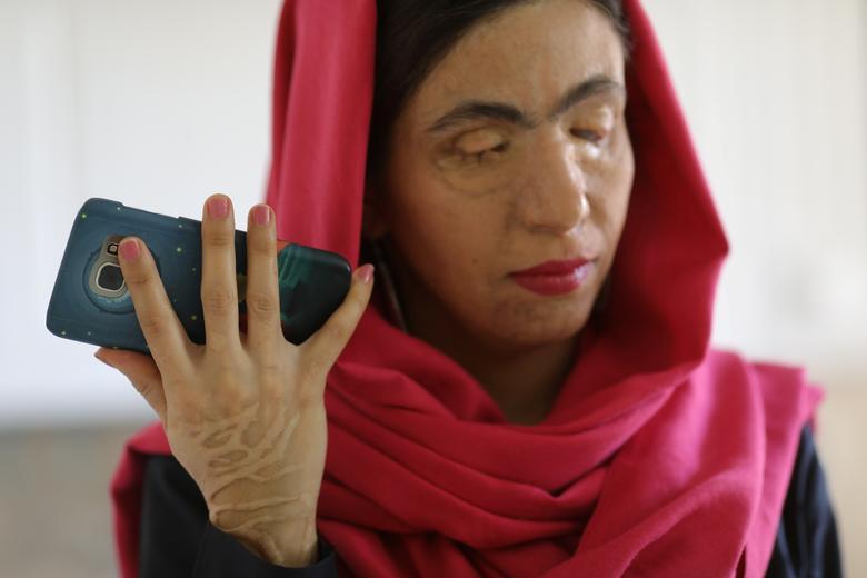 قربانی اسیدپاشی در ایران