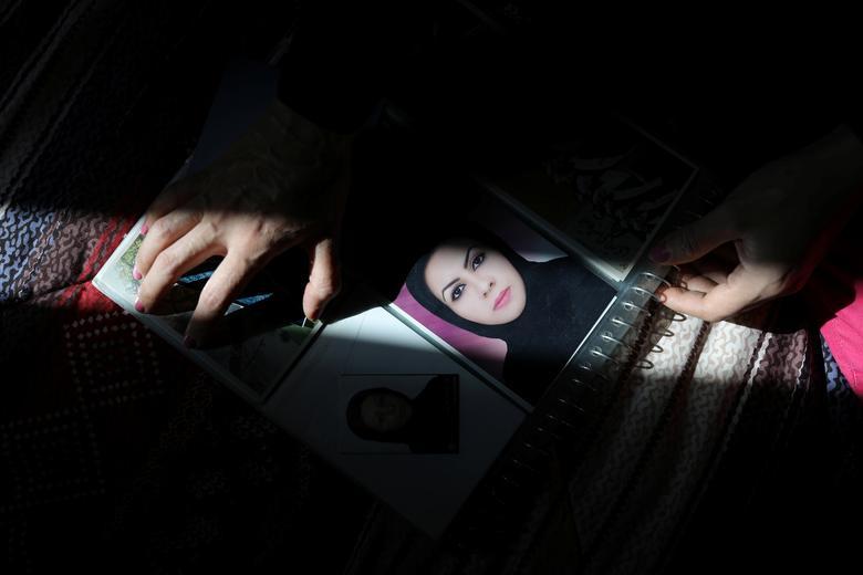 دختر قربانی اسیدپاشی