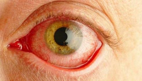 با مؤسسۀ عامالمنفعۀ حمایت از بیماران چشمی «آر پی» آشنا شویم