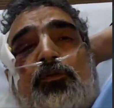 توضیحات کمالوندی درباره جزئیات حادثهای که در نطنز دچارش شد