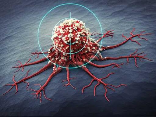سرطان رحم چهارمین سرطان کشنده در زنان