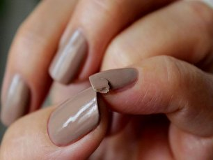 آیا علت شکستن ناخن و ریزش مو یکی است؟ دلایل و درمانها