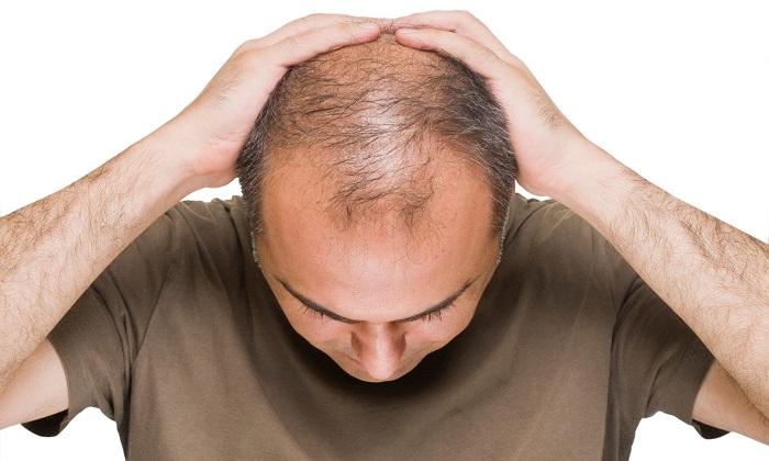 مردان طاس و احتمال بیشتر تجربه نوع شدید کووید-19