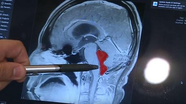 14 سال زندگی با یک کرم نواری در مغز/