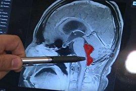 """14 سال زندگی با یک """"کِرم"""" در مغز/ """"گوشت نیم پز"""" متهم ردیف اول! (+عکس)"""