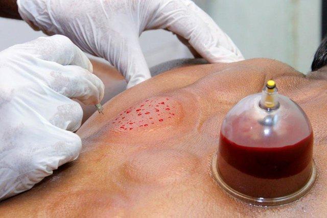 پزشک طب سنتی: کرونایی ها با تشخیص پزشک «حجامت» کنند