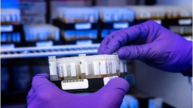 محققان ایتالیایی: آنتی بادیها حداقل ۸ ماه در بدن بیماران کرونایی باقی میمانند