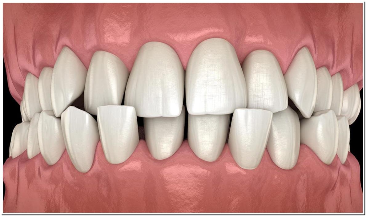 کراودینگ دندان