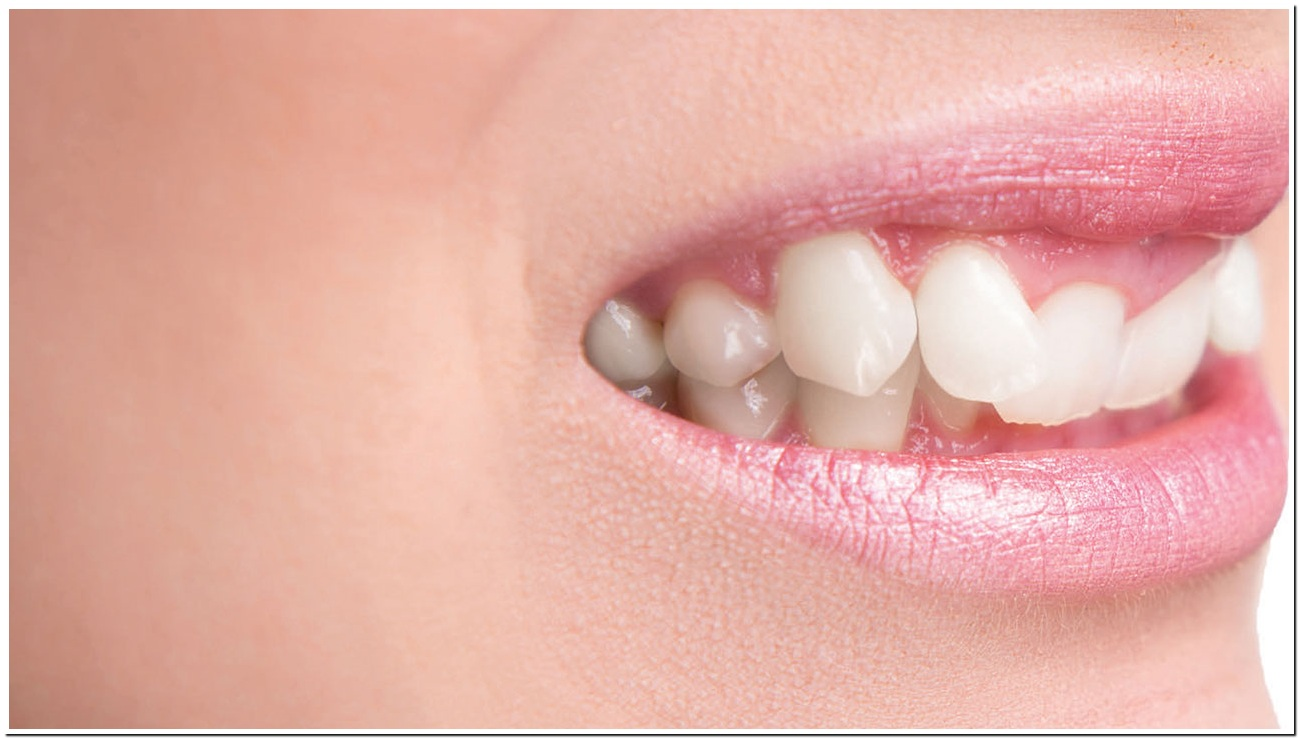 کراودینگ دندان چیست و چگونه درمان می شود؟