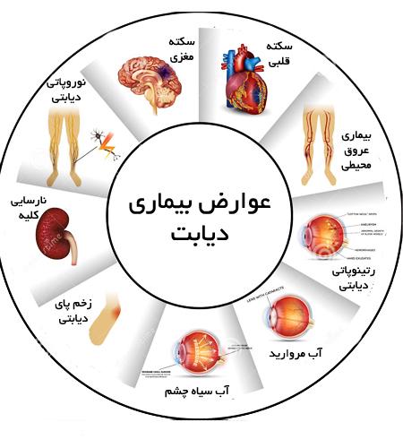 ۹ علامت پنهان قند خون کنترل نشده