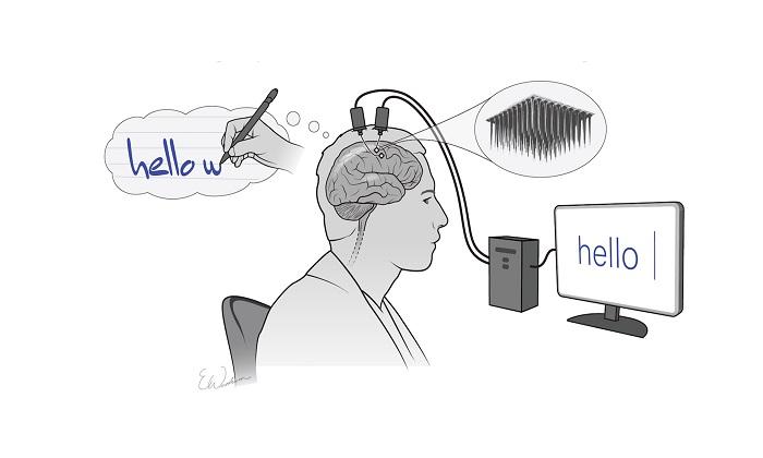 تبدیل افکار به متن با یک ایمپلنت مغزی جدید