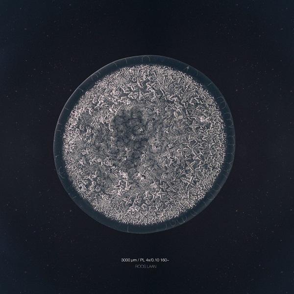 سفری به تصاویر شگفت انگیز از اشک انسان زیر میکروسکوپ(+عکس)