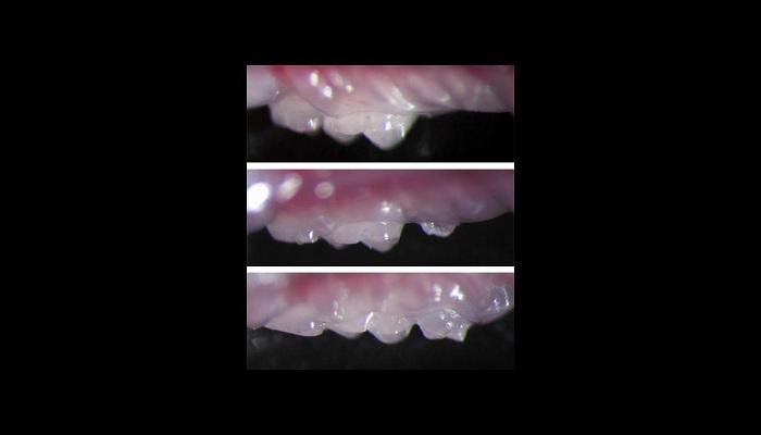 محققان ژاپنی و کشفی جالب درباره احتمال رشد دندان های جدید در بزرگسالی(+عکس)