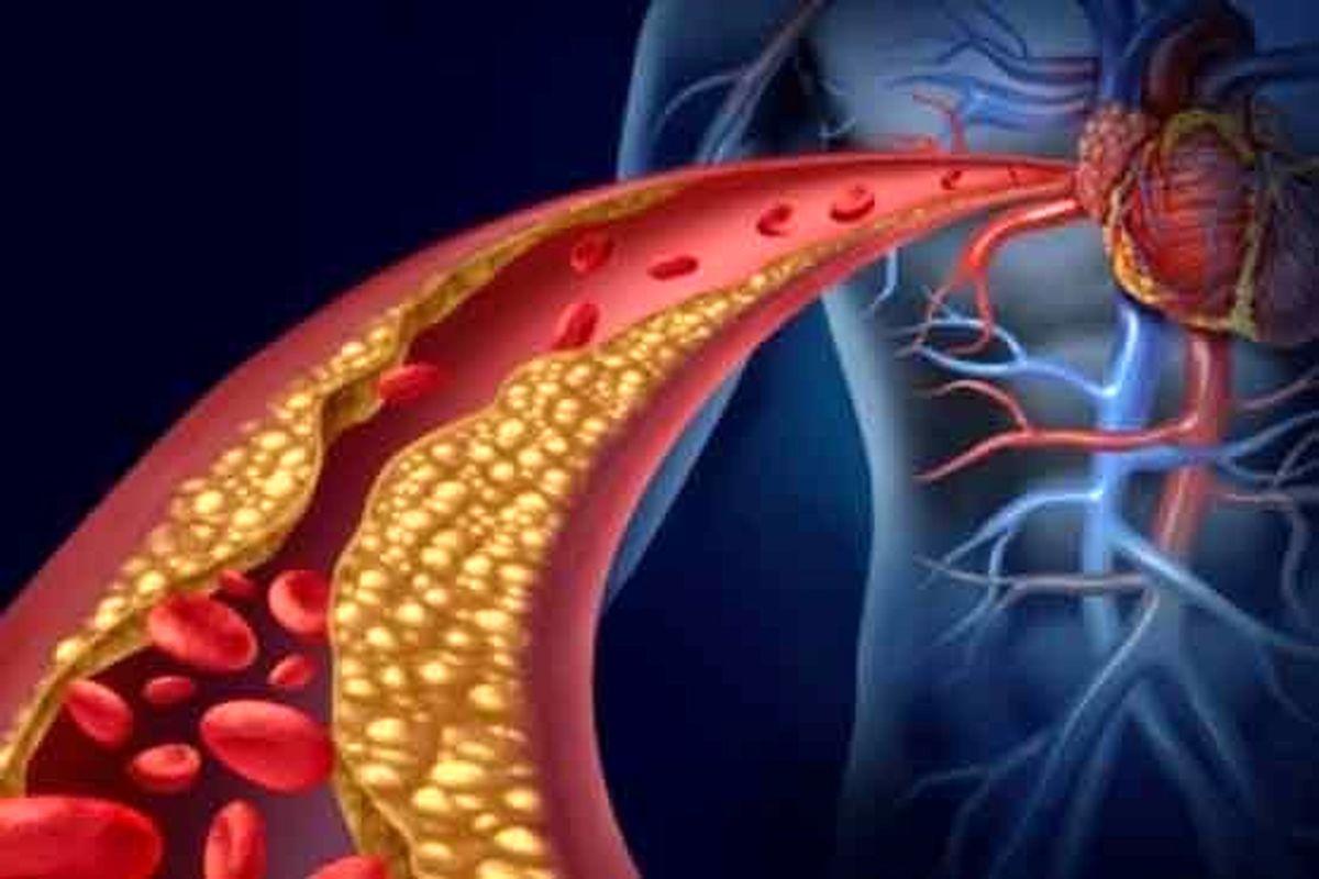 دلیل لخته شدن خون در بیماران کرونا چیست؟