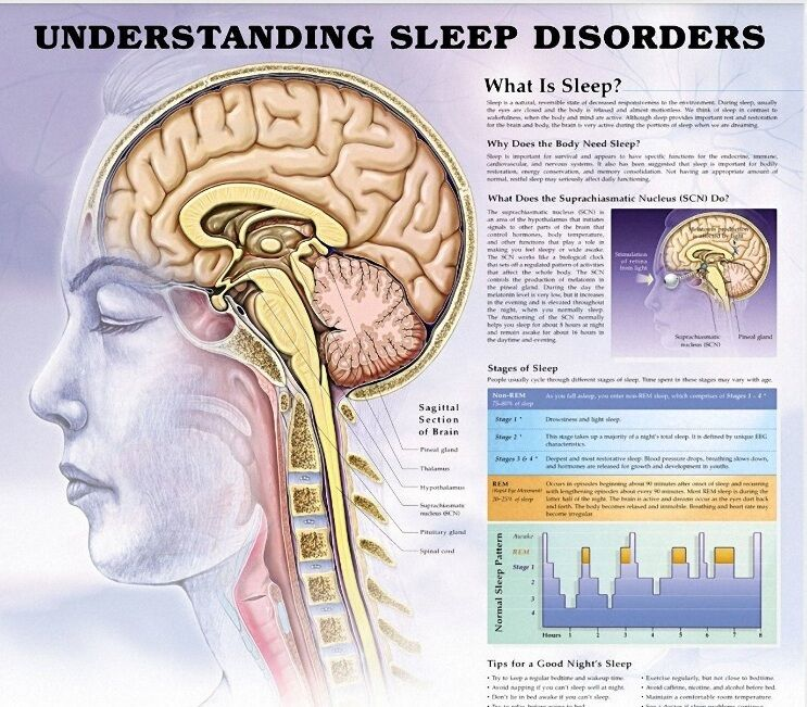 محققان: کمبود خواب به عملکرد عروق خونی آسیب میرساند