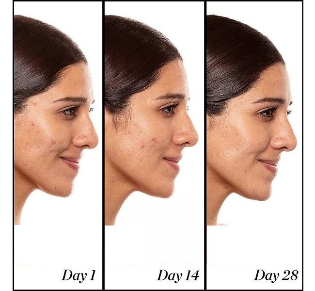 همراه با رتینول؛ یکی از محبوب ترین ترکیبات مراقبت از پوست