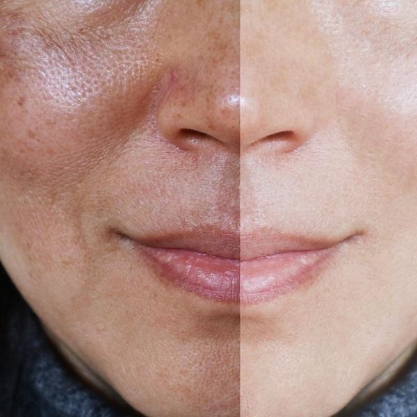 ملاسما؛ یک بیماری پوستی از ابتلا تا درمان (+عکس)