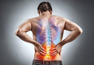 مسکن های طبیعی برای درمان کمر درد
