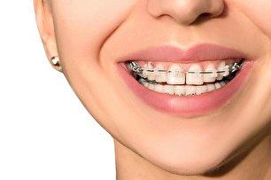 میدلاین دندان چیست؟