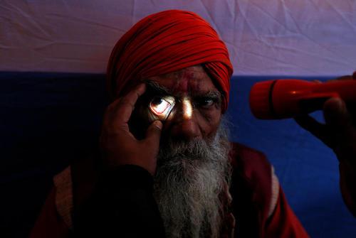 ویزیت مجانی وضعیت چشم – هند