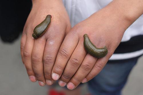زالو درمانی در کشمیر