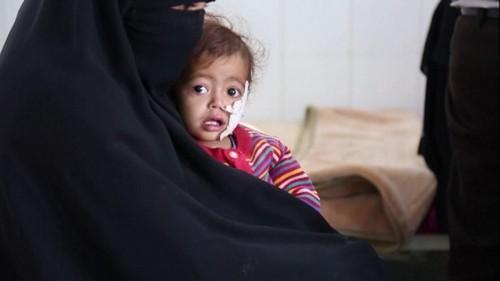 کودکان بیمار در کشور جنگزده یمن با مشکلات زیادی روبه رو هستند. یمن هم اکنون توسط ائتلاف نظامی عربستان سعودی در محاصره است و از سوی این ائتلاف مورد حملات نظامی مختلف قرار می گیرد