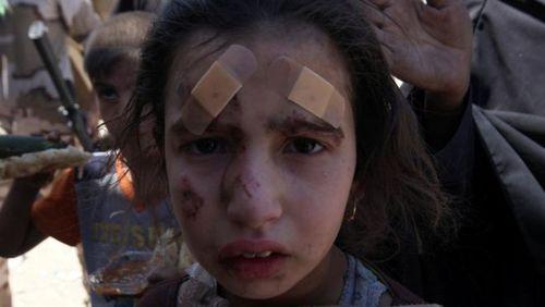آثار درگیری های مسلحانه بر صورت کودک عراقی