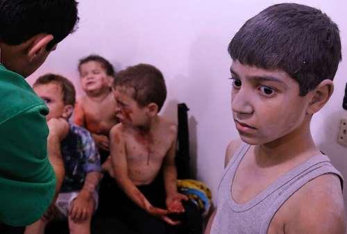 مداوای کودکان زخمی از جنگ در بیمارستانی صحرایی در حومه دمشق سوریه